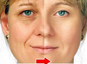 Antirughe naturale per occhi